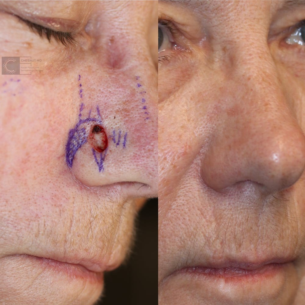 MOHS Gallery - Patient 63017790 - Image 1