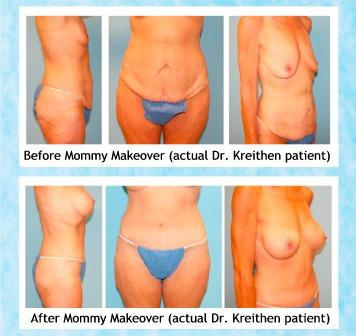 Holcomb - Kreithen Blog | Body Contouring Helps Post-Bariatric Surgery Patients Keep off the Weight