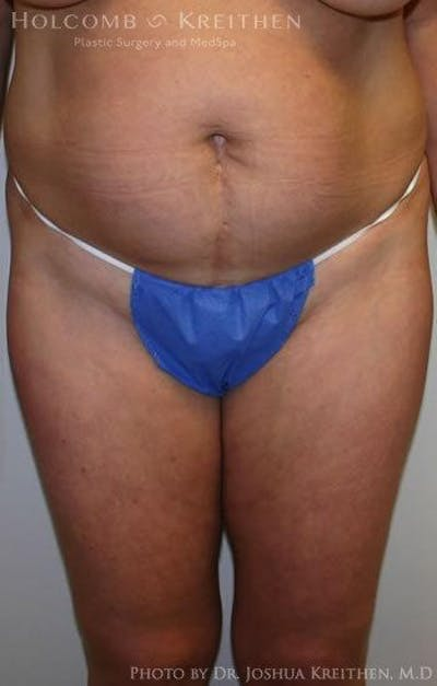 Abdominoplasty Gallery - Patient 6236435 - Image 1