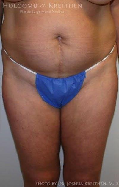 Abdominoplasty Gallery - Patient 6236435 - Image 1