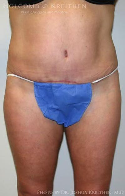 Tummy Tuck Gallery - Patient 6236435 - Image 2