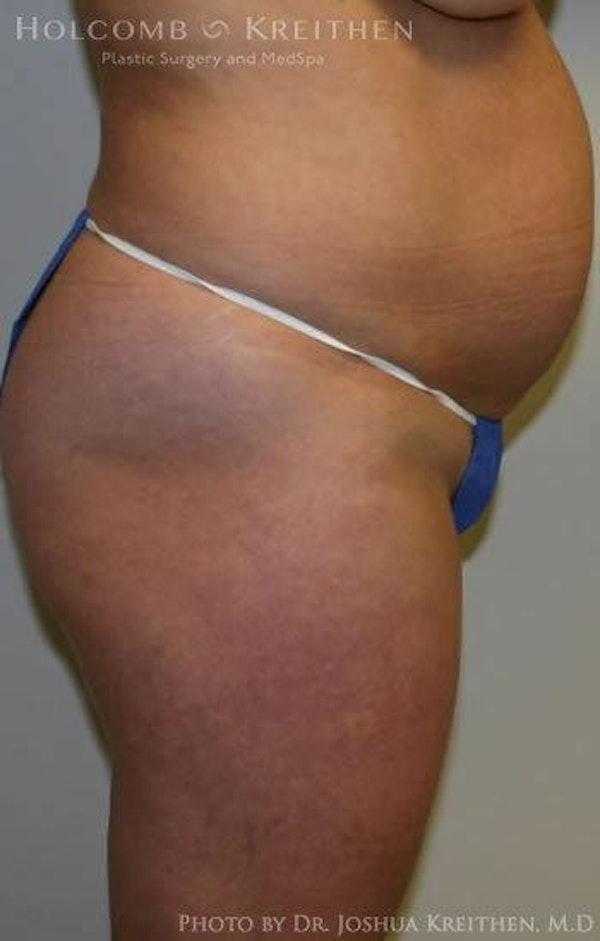 Abdominoplasty Gallery - Patient 6236435 - Image 3