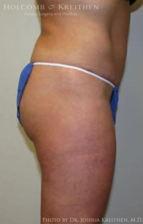 Abdominoplasty Gallery - Patient 6236435 - Image 4