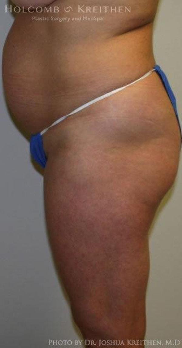 Abdominoplasty Gallery - Patient 6236435 - Image 5