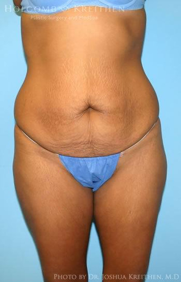 Abdominoplasty Gallery - Patient 6236437 - Image 1