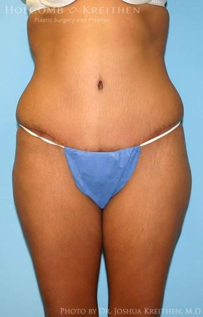 Abdominoplasty Gallery - Patient 6236437 - Image 2