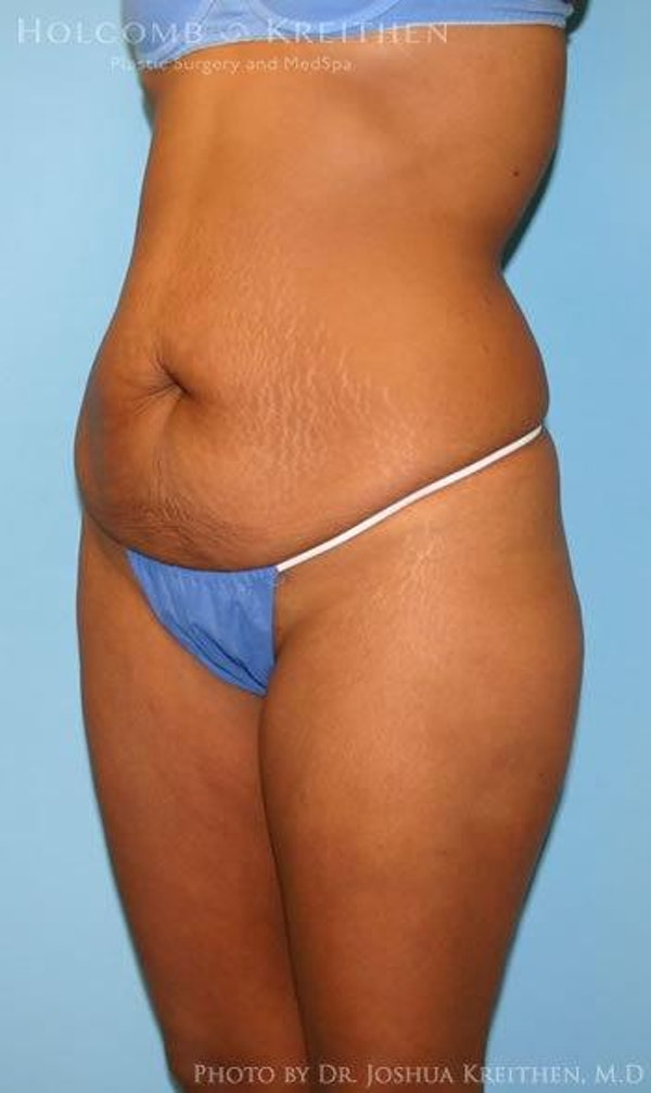 Abdominoplasty Gallery - Patient 6236437 - Image 5