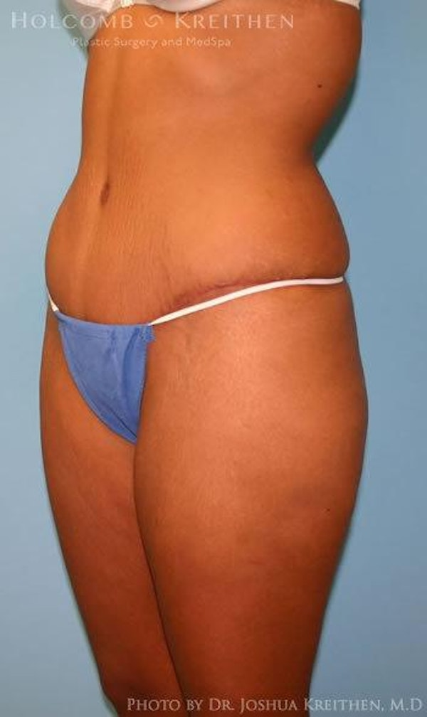 Abdominoplasty Gallery - Patient 6236437 - Image 6