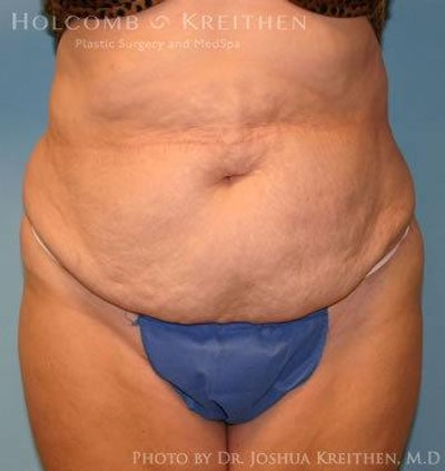 Abdominoplasty Gallery - Patient 6236440 - Image 1