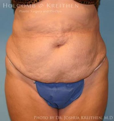 Tummy Tuck Gallery - Patient 6236440 - Image 1