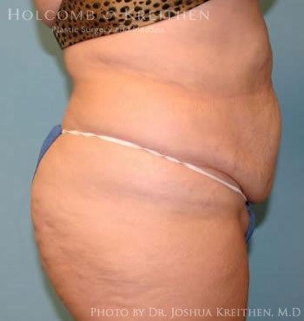 Abdominoplasty Gallery - Patient 6236440 - Image 3