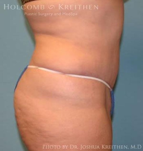 Abdominoplasty Gallery - Patient 6236440 - Image 4