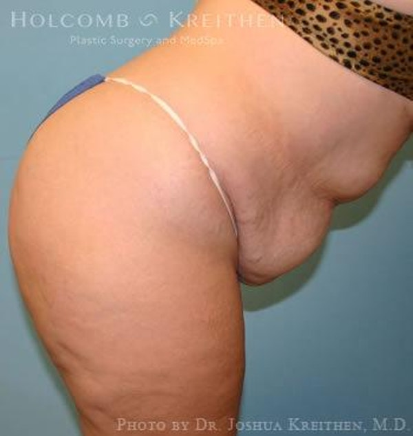 Abdominoplasty Gallery - Patient 6236440 - Image 5