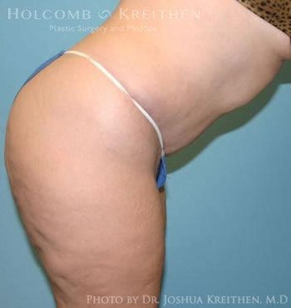 Abdominoplasty Gallery - Patient 6236440 - Image 6