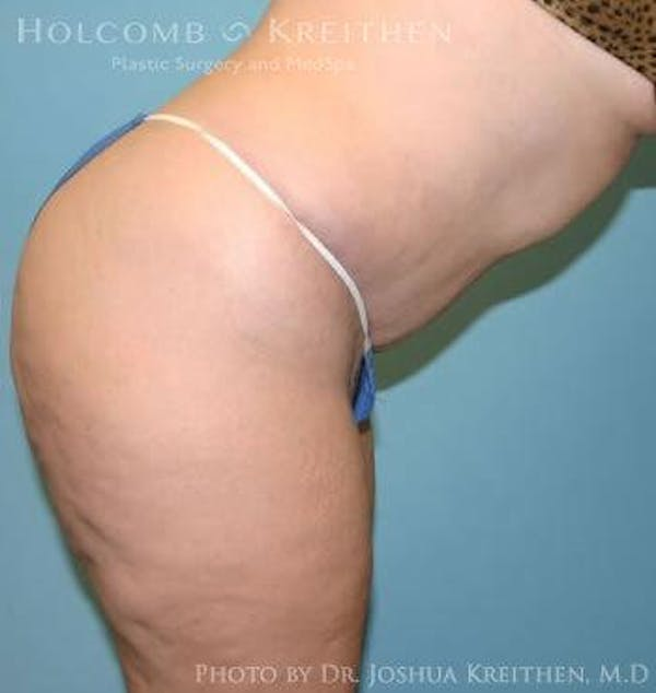 Tummy Tuck Gallery - Patient 6236440 - Image 6