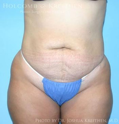 Abdominoplasty Gallery - Patient 6236445 - Image 1