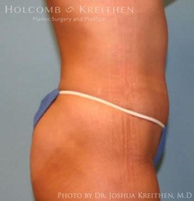 Abdominoplasty Gallery - Patient 6236445 - Image 4
