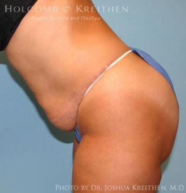 Abdominoplasty Gallery - Patient 6236445 - Image 5