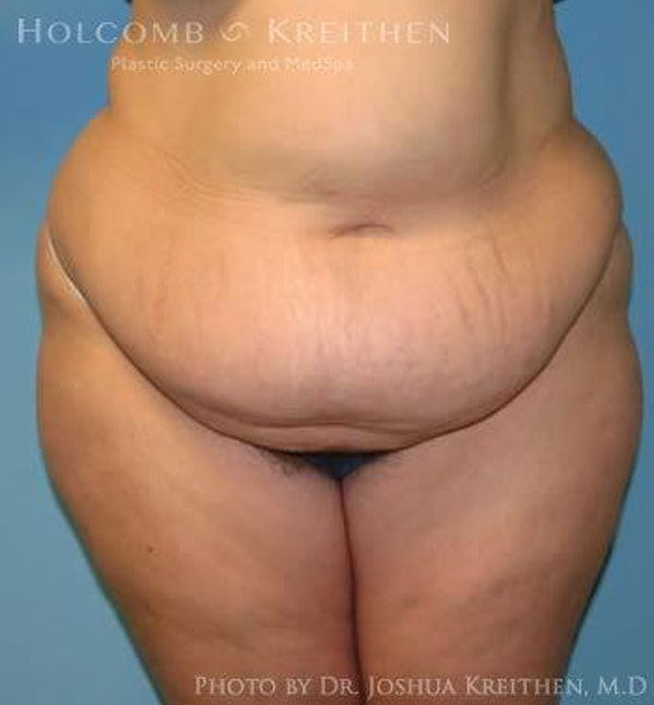 Abdominoplasty Gallery - Patient 6236446 - Image 1