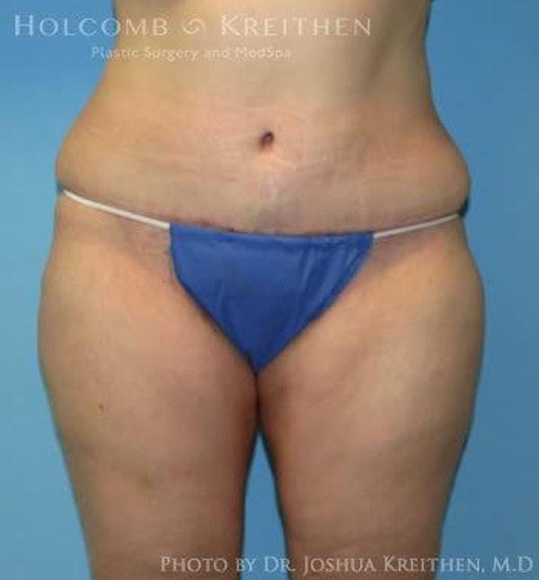 Abdominoplasty Gallery - Patient 6236446 - Image 2