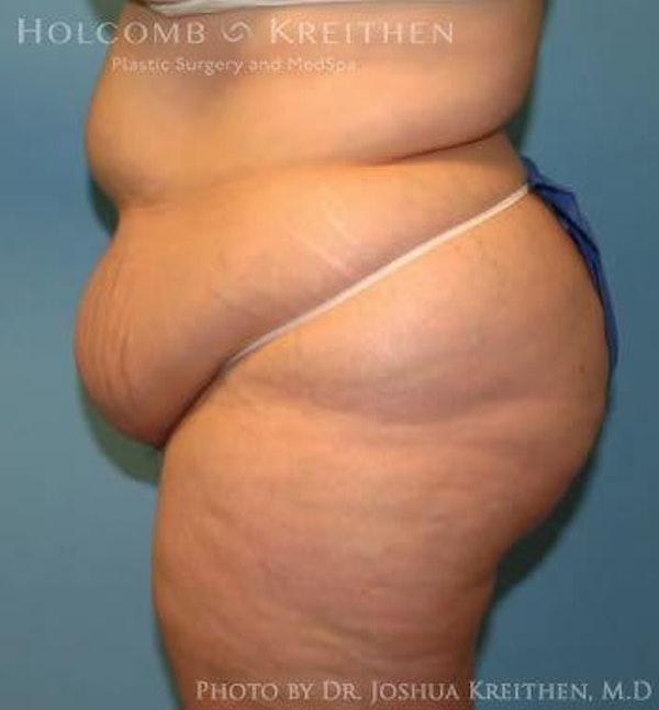 Abdominoplasty Gallery - Patient 6236446 - Image 3