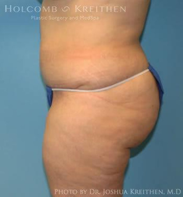 Abdominoplasty Gallery - Patient 6236446 - Image 4