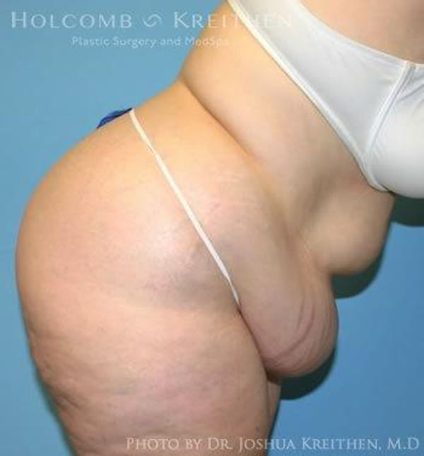 Tummy Tuck Gallery - Patient 6236446 - Image 5