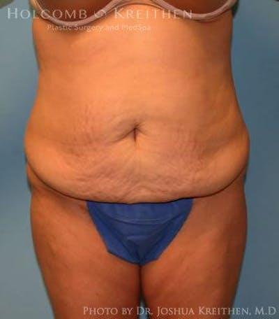 Abdominoplasty Gallery - Patient 6236453 - Image 7