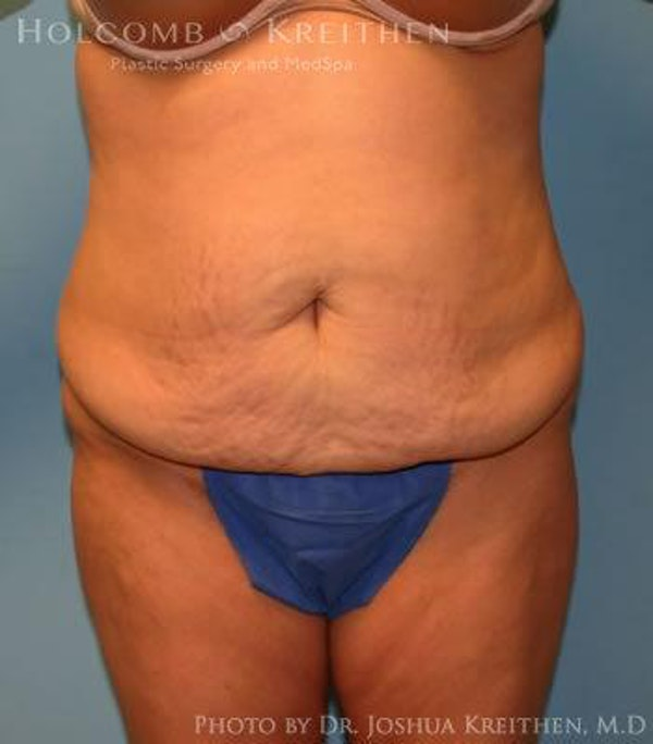 Abdominoplasty Gallery - Patient 6236453 - Image 1
