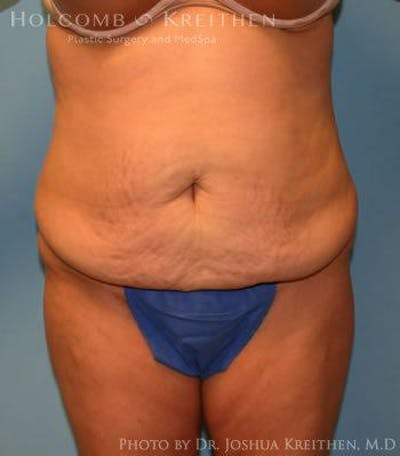 Tummy Tuck Gallery - Patient 6236453 - Image 1