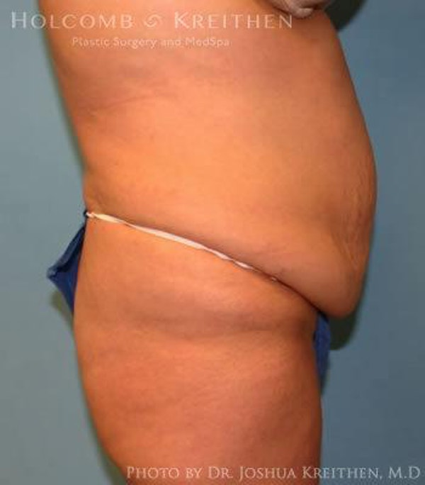 Abdominoplasty Gallery - Patient 6236453 - Image 3