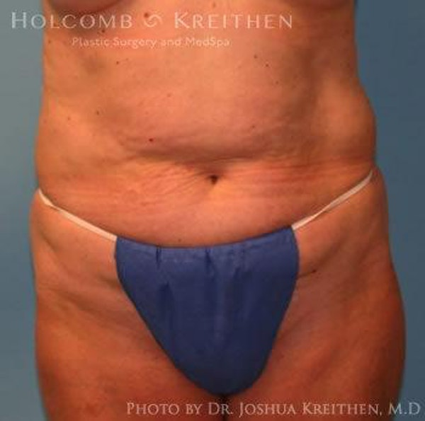 Abdominoplasty Gallery - Patient 6236458 - Image 1