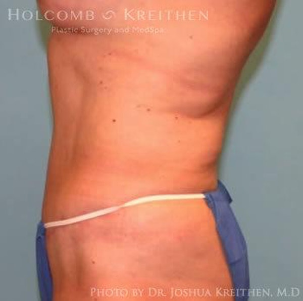 Abdominoplasty Gallery - Patient 6236458 - Image 4