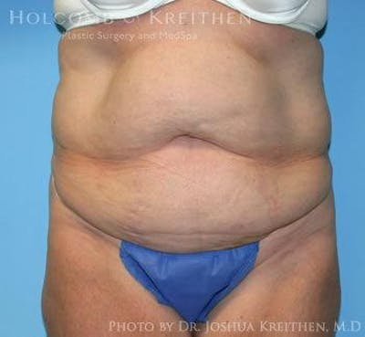 Tummy Tuck Gallery - Patient 6236468 - Image 1