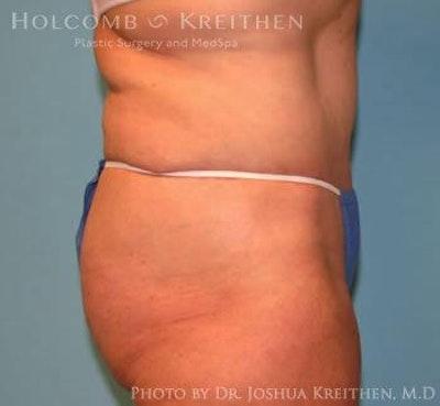 Abdominoplasty Gallery - Patient 6236468 - Image 4