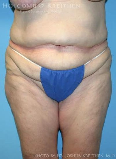Abdominoplasty Gallery - Patient 6236473 - Image 1