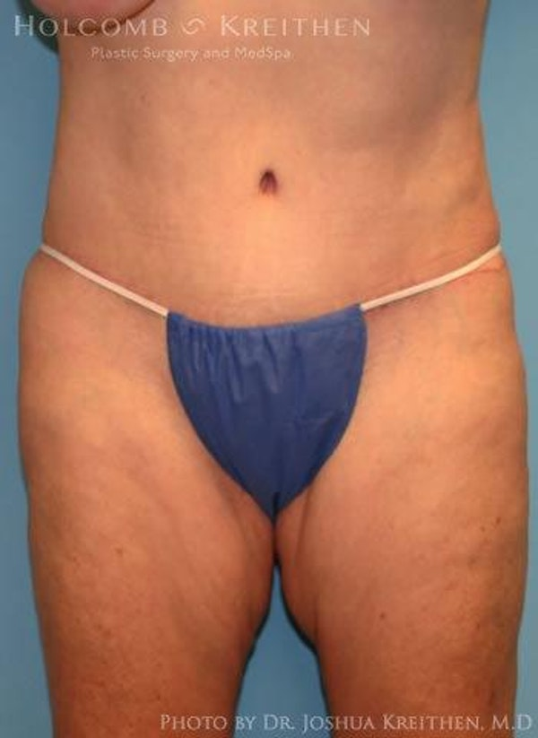 Abdominoplasty Gallery - Patient 6236473 - Image 2