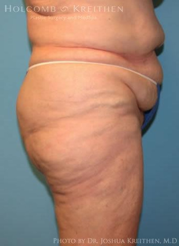 Abdominoplasty Gallery - Patient 6236473 - Image 3