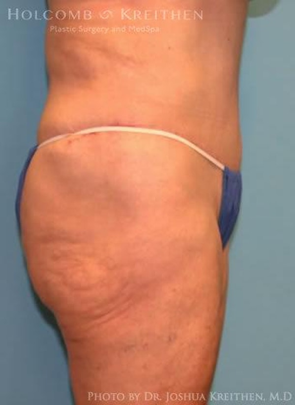Abdominoplasty Gallery - Patient 6236473 - Image 4