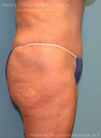 Abdominoplasty Gallery - Patient 6236473 - Image 4