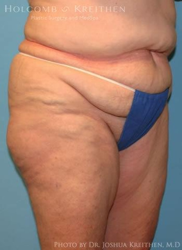 Abdominoplasty Gallery - Patient 6236473 - Image 5