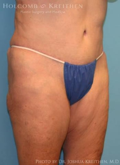 Abdominoplasty Gallery - Patient 6236473 - Image 6