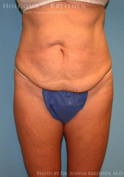 Abdominoplasty Gallery - Patient 6236476 - Image 1