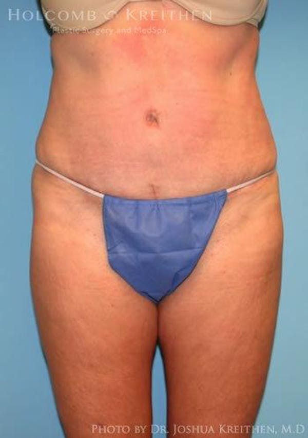 Abdominoplasty Gallery - Patient 6236476 - Image 2