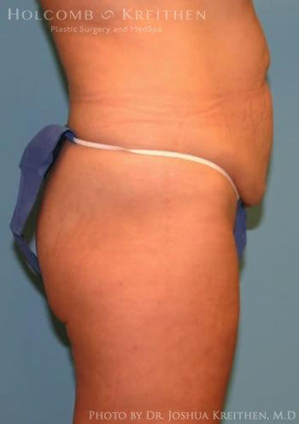 Abdominoplasty Gallery - Patient 6236476 - Image 3