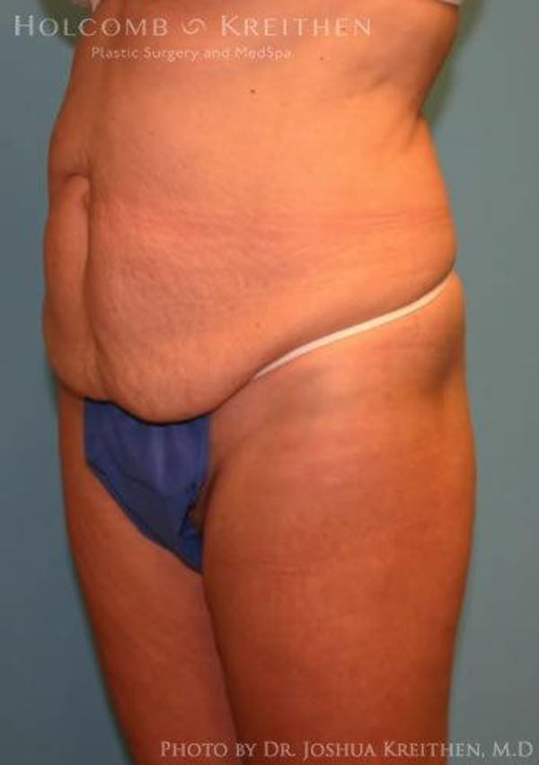 Abdominoplasty Gallery - Patient 6236476 - Image 5