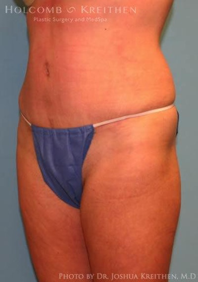 Abdominoplasty Gallery - Patient 6236476 - Image 6