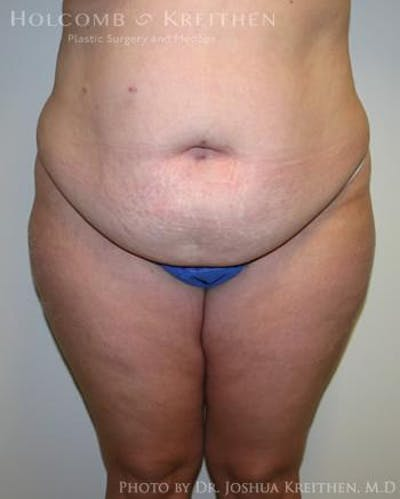 Abdominoplasty Gallery - Patient 6236480 - Image 1