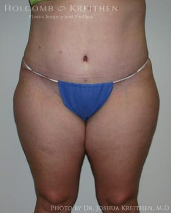 Tummy Tuck Gallery - Patient 6236480 - Image 2