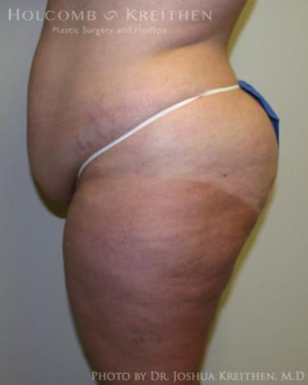 Tummy Tuck Gallery - Patient 6236480 - Image 3